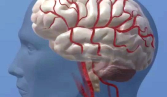 Midlife health may also help decrease Stroke chance Later In existence